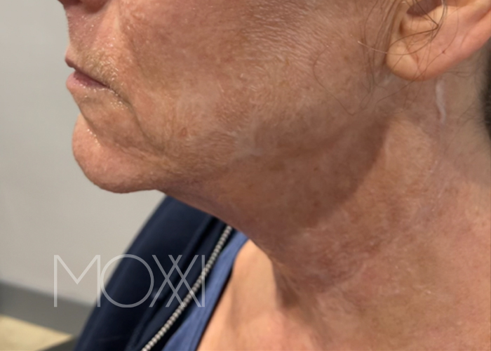 PRP hair restoration treatment before and after slider image